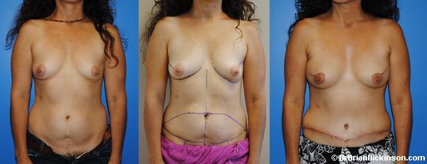 Early Post-Operative Bilateral DIEP Breast Reconstruction