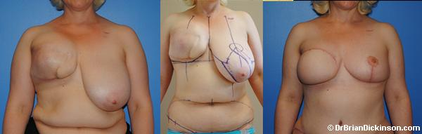 DIEP Flap Breast Reconstruction by Dr. Dickinson in Newport Beach