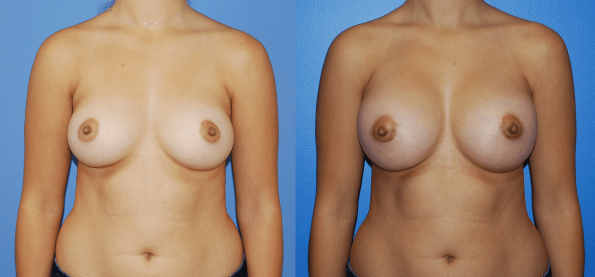 What Size Implants for Small, Natural-looking Breasts