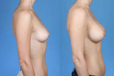 Breast Augmentation with Silicone Before and After