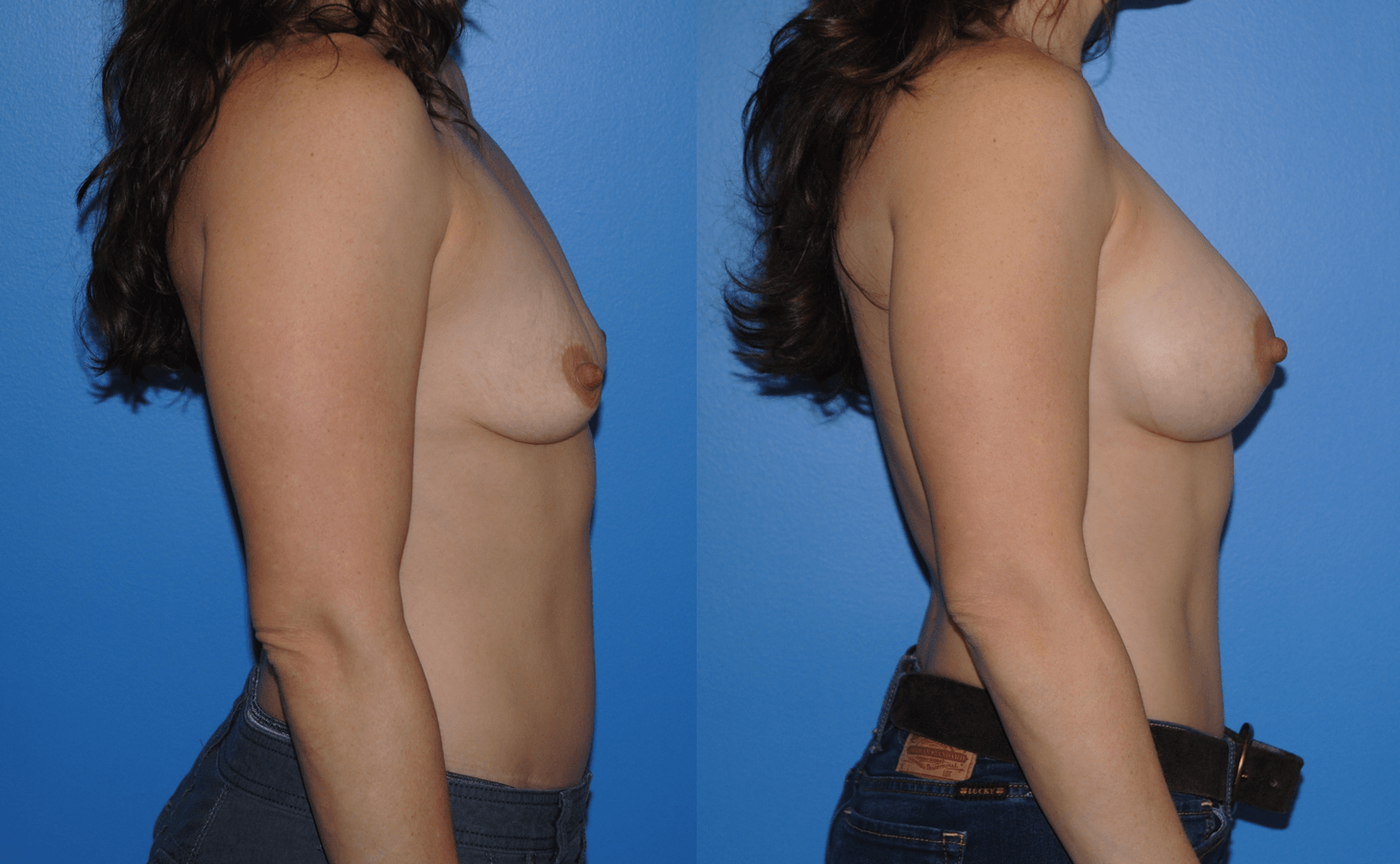 Breast Augmentation Newport Beach Orange County Silicone Implants