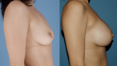 Breast Implants_Los Angeles_Silicone Implant_Brian Dickinson MD