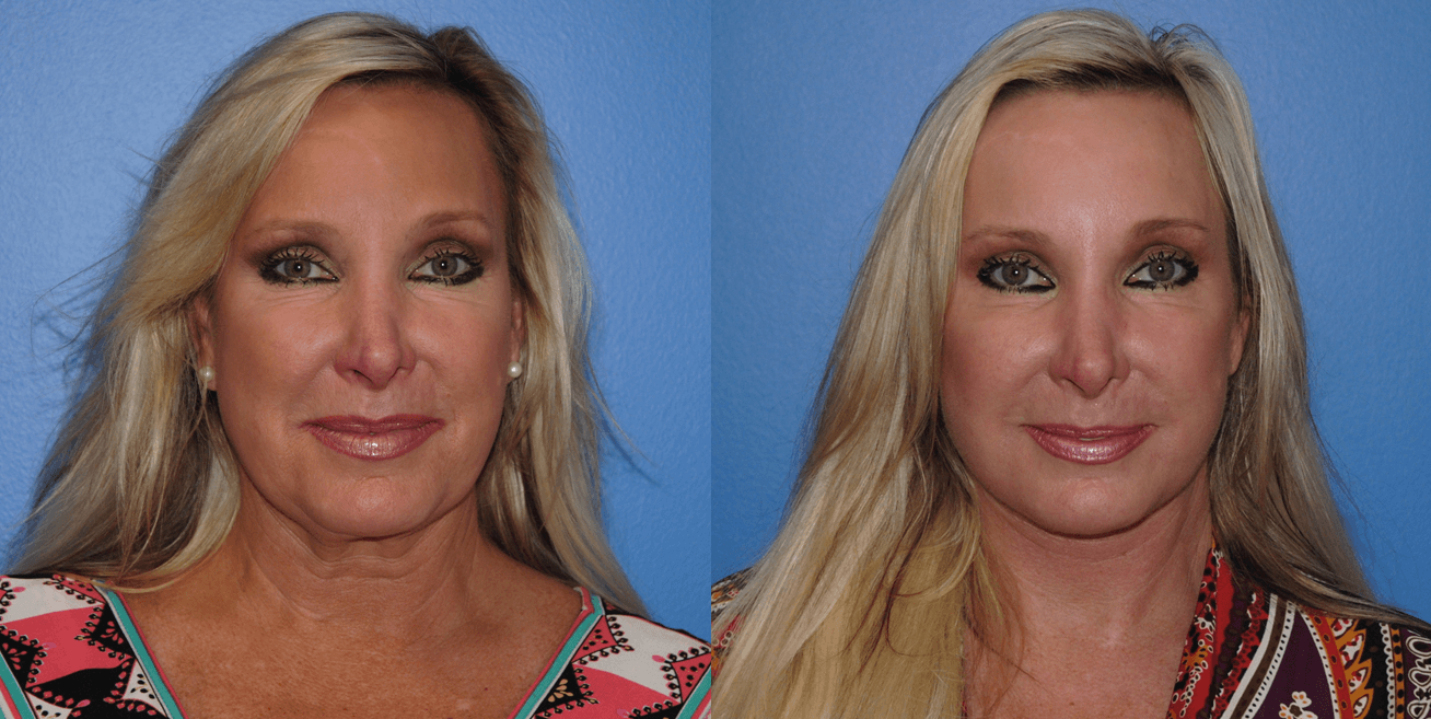 Facelift Surgery in Young Patients