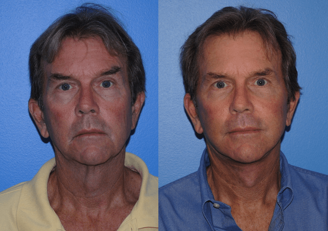 Facelift Surgery Males