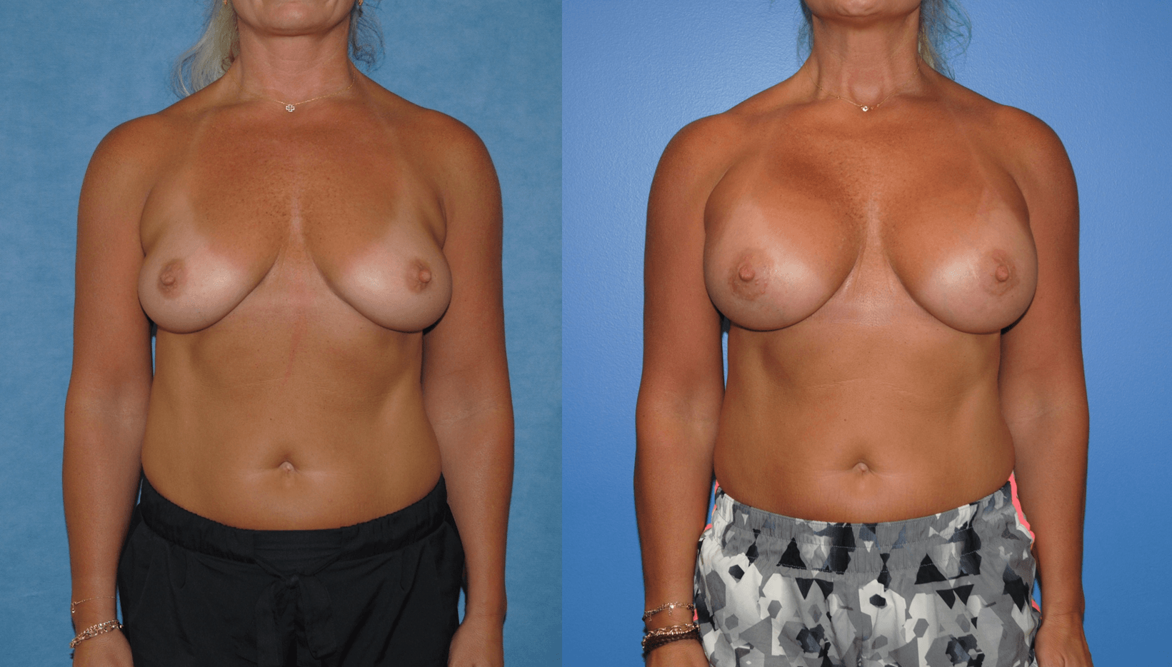 Ms Fitness Silicone Breast Implants