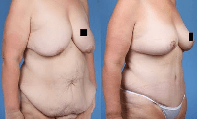Post Bariatric Body Contouring _NB