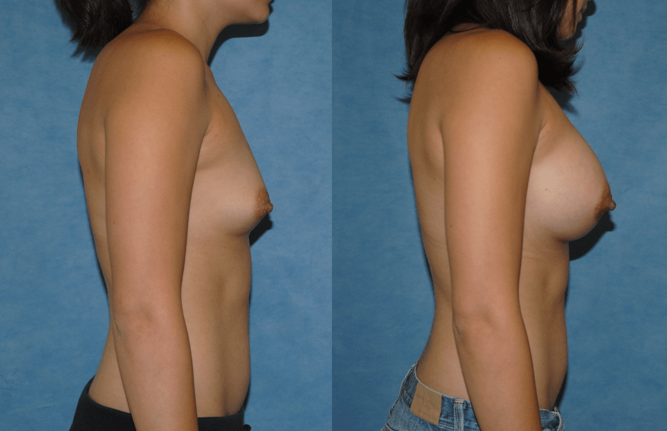 Breast Augmentation-Orange County-Brian Dickinson M.D.-Saline Implants