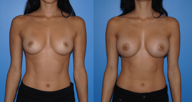 Natural Look Breast Augmentation - Areola Incision