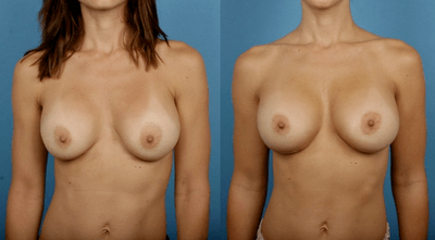 Capsular Contracture Breast Reconstruction Dr. Dickinson