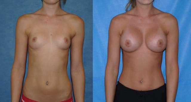 Silicone Breast Implants Augmentation