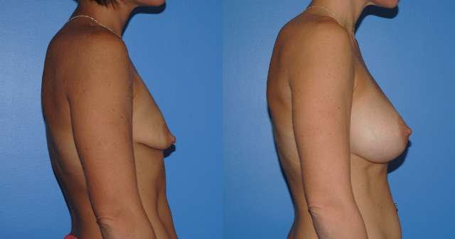Tuberous Breast Deformity Breast Reconstruction