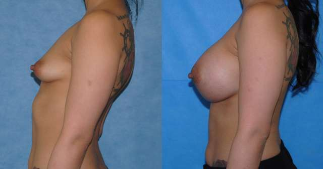 Tuberous Breast Reconstruction Newport Beach