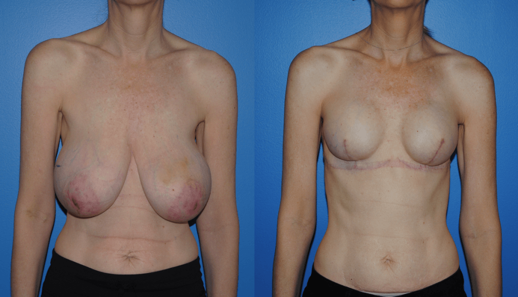 Breast Reconstruction with Tissue Expander and Implant Reconstruction