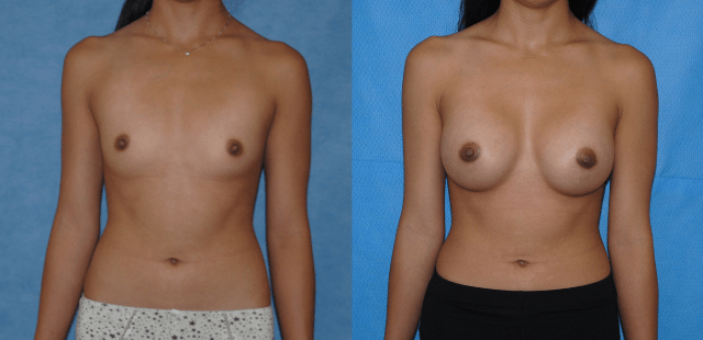 Saline Breast Implant