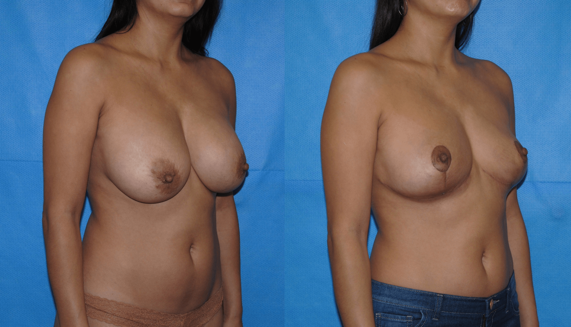 Breast implant removal.