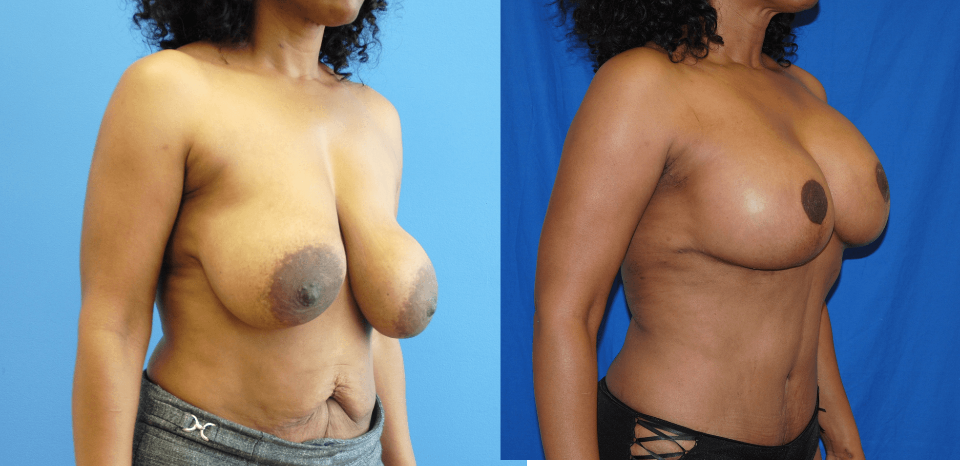 Removal and Replacement of Breast Implant with Breast Lift