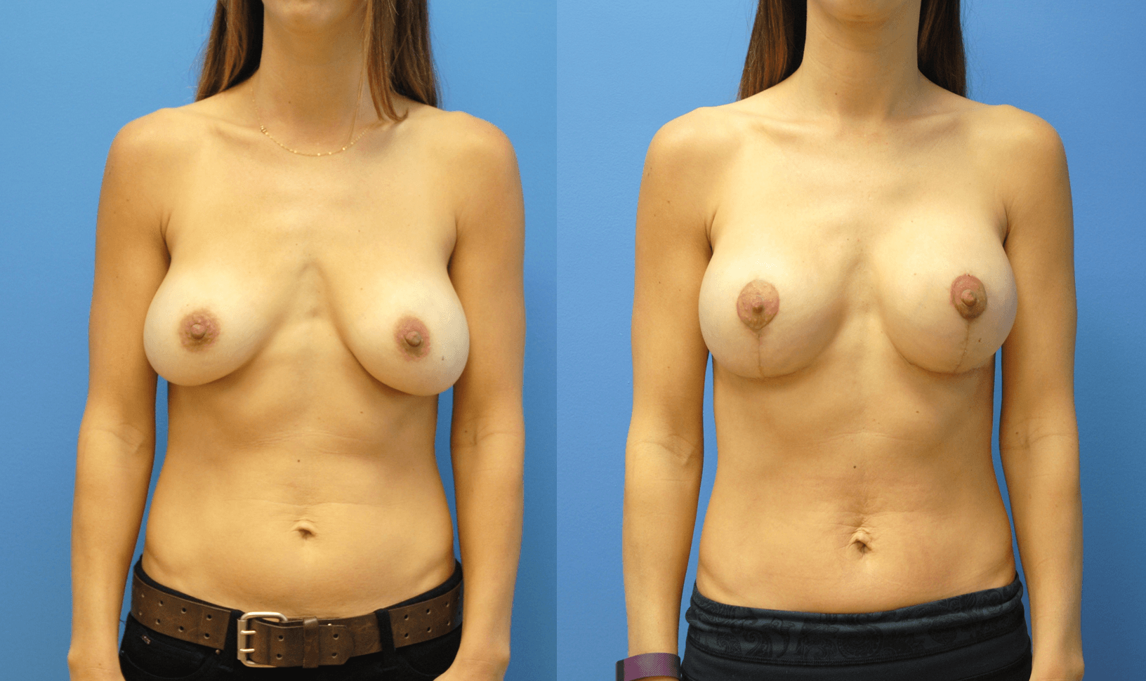 Mastopexy Augmentation