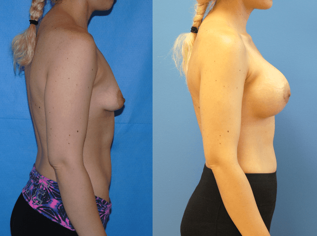 Breast Augmentation-Orange County-Tuberous Breast Deformity-Brian Dickinson, M.D.