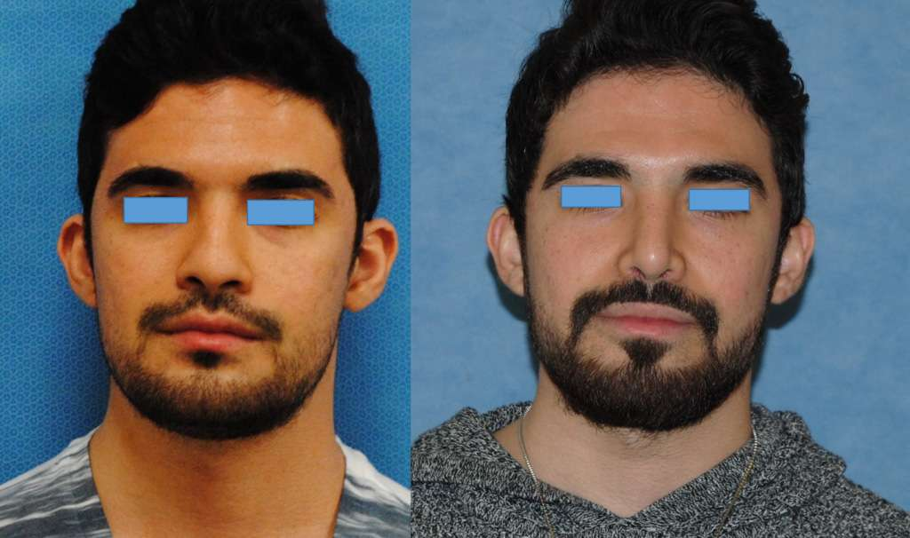 Male Middle Eastern Rhinoplasty Newport Beach