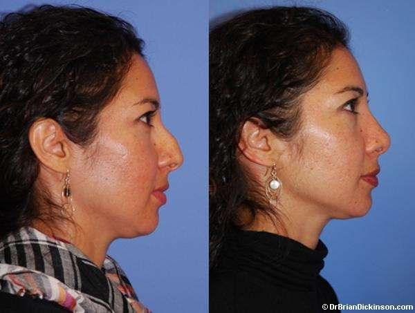 Nose Job Newport Beach