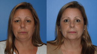 Upper Blepharoplasty Orange County