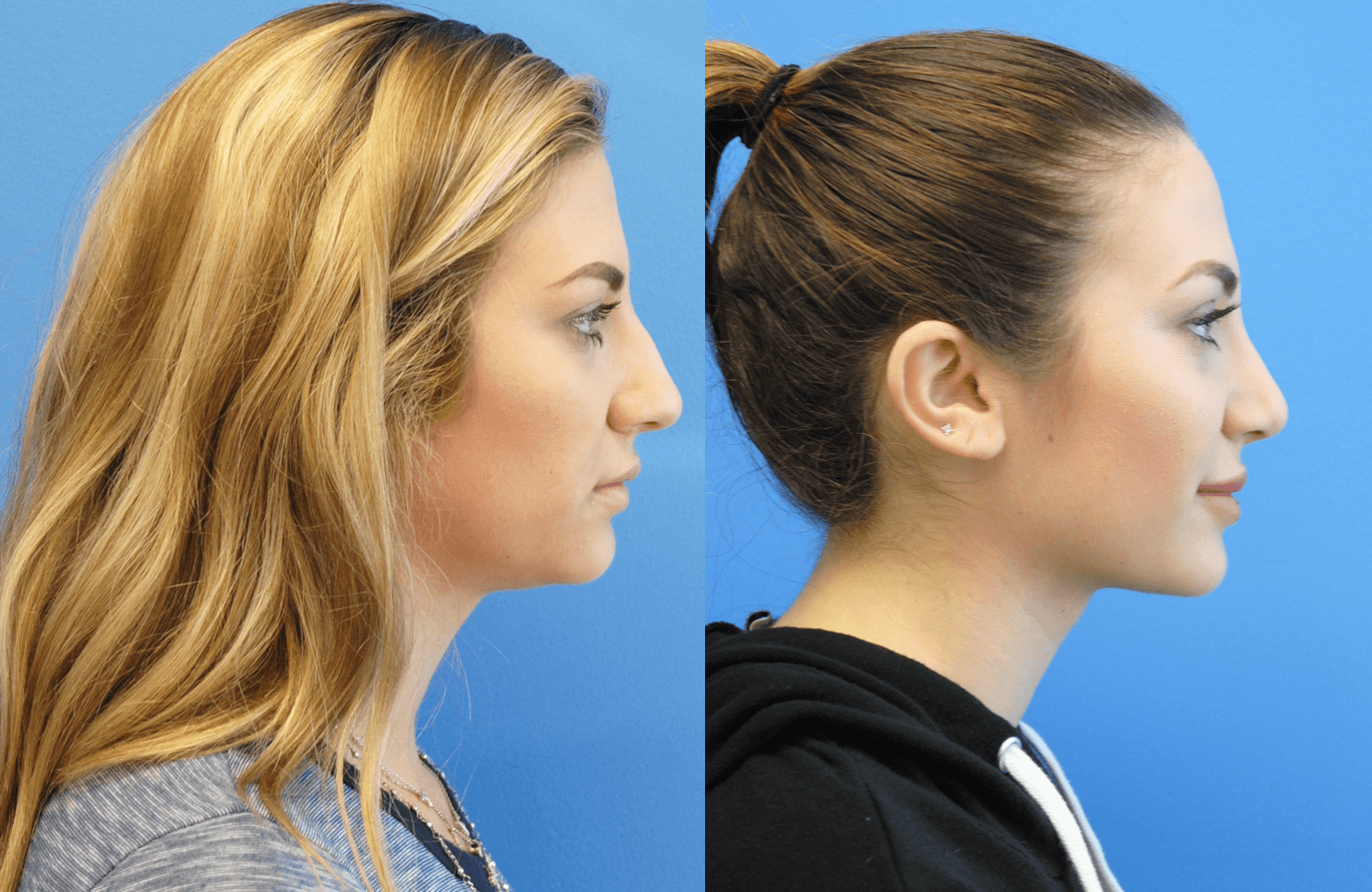 Orange County-Rhinoplasty-Brian Dickinson M.D.-Newport Beach