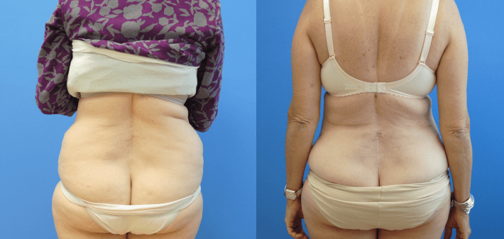 Liposuction of Lower Back