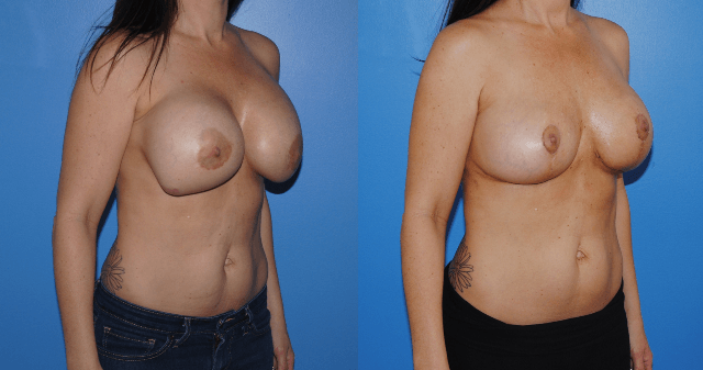 Mastopexy-Removal-Replacement-Saline - Brian Dickinson, M.D.