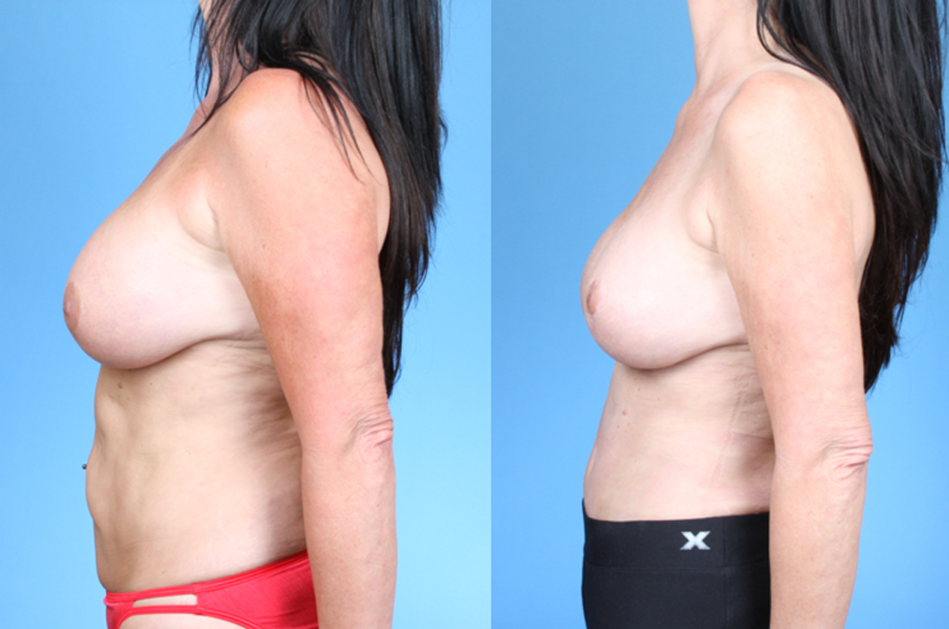 1_Abdominoplasty-Dickinson-Profile