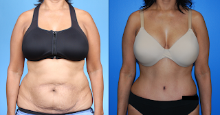 Abdominoplasty-Blog-II