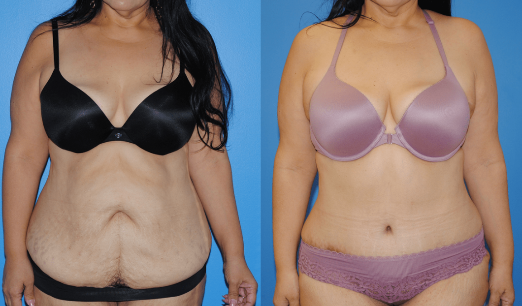 Abdominoplasty-Brian-Dickinson