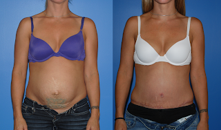 Abdominoplasty-Dickinson-Newport-Beach