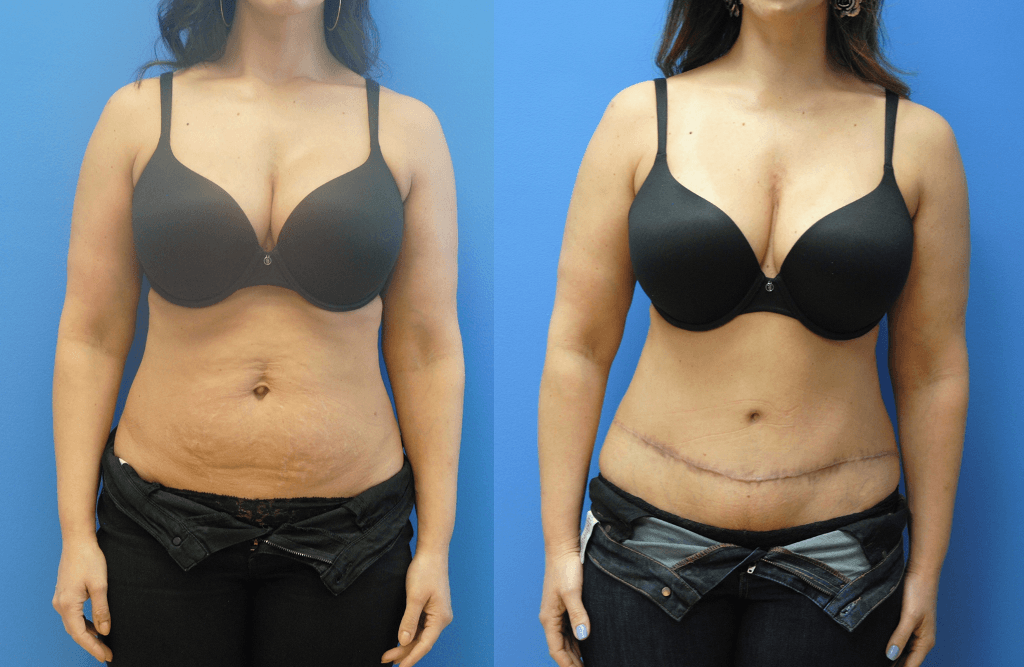Abdominoplasty-Newport-Beach-Brian-Dickinson-M.D.-Mastopexy-Augmentation