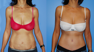 Abdominoplasty-Newport-Beach-Dickinson
