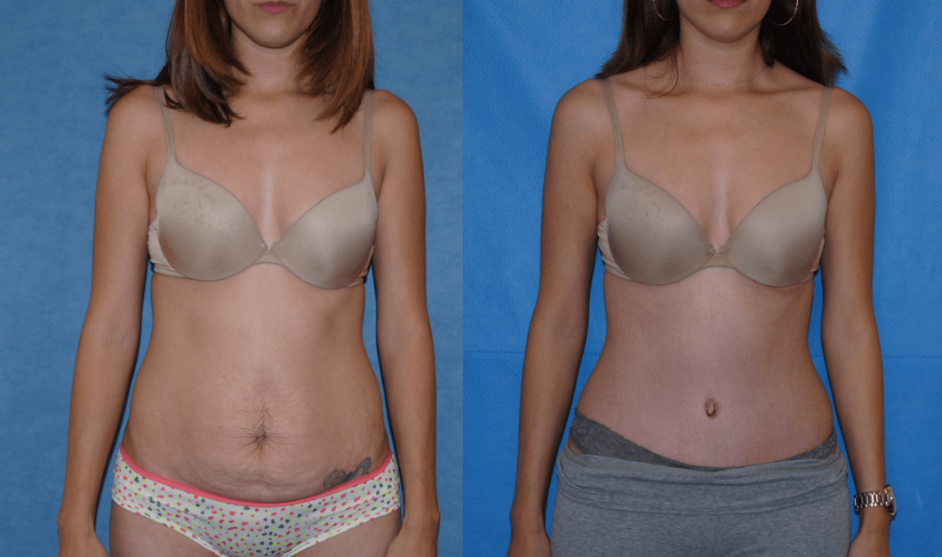Abdominoplasty-Newport-Beach-Orange-County-Costa-Mesa