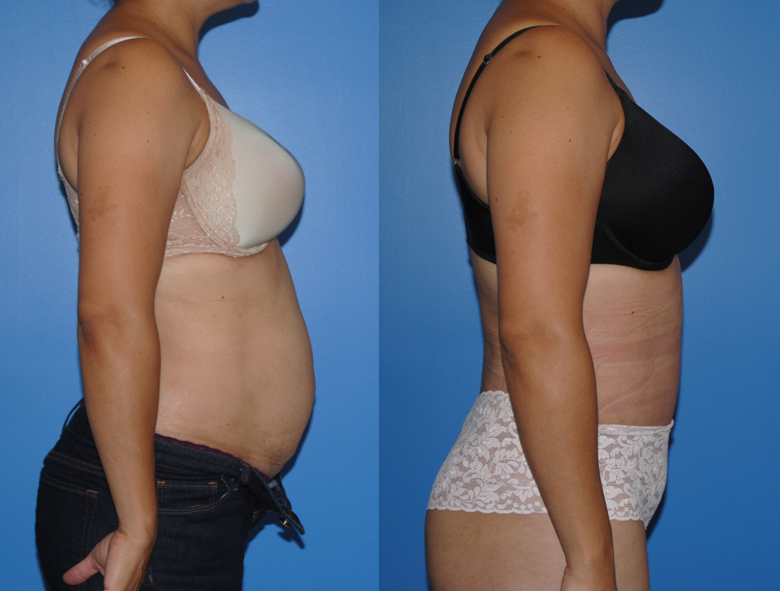 Abdominoplasty-Newport Beach-Orange County