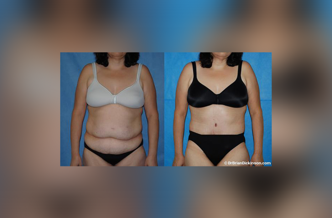 Abdominoplasty-Post-Bariatric_NB