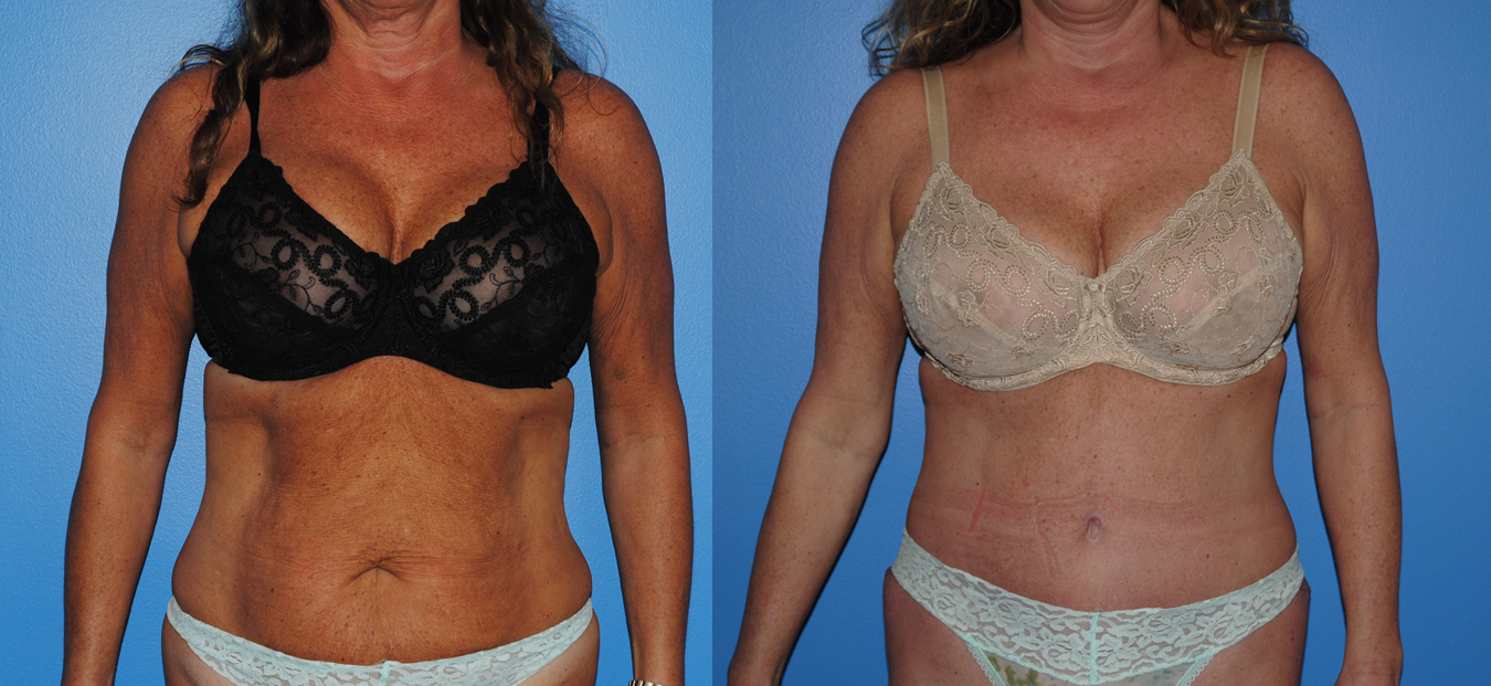 Abdominoplasty-Tummy Tuck-Newport Beach-Orange County