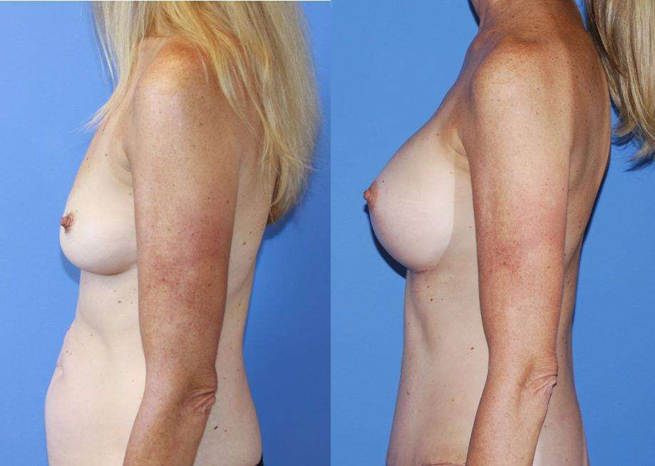 Breast-Augmentation-Abdominoplasty