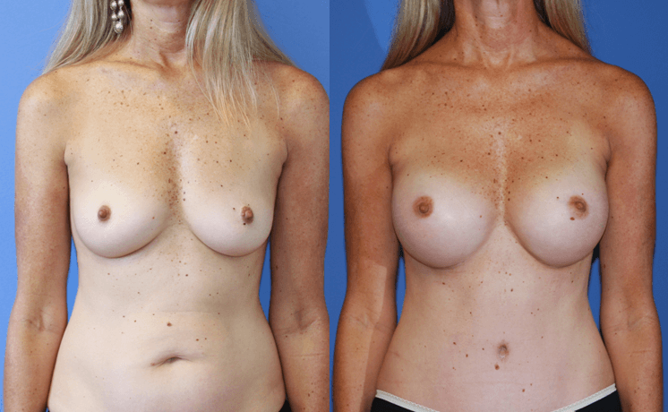 Breast-Augmentation-Dickinson-Excellent-Results-Newport-Beach