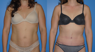 Dickinson-Abdominoplasty-Tummy-Tuck-Newport-Beach
