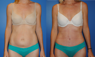 Dickinson-Newport-Beach-Abdominoplasty