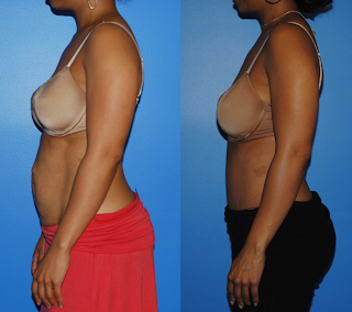 Dickinson-Newport-Beach-Tummy-Tuck-Abdominoplasty