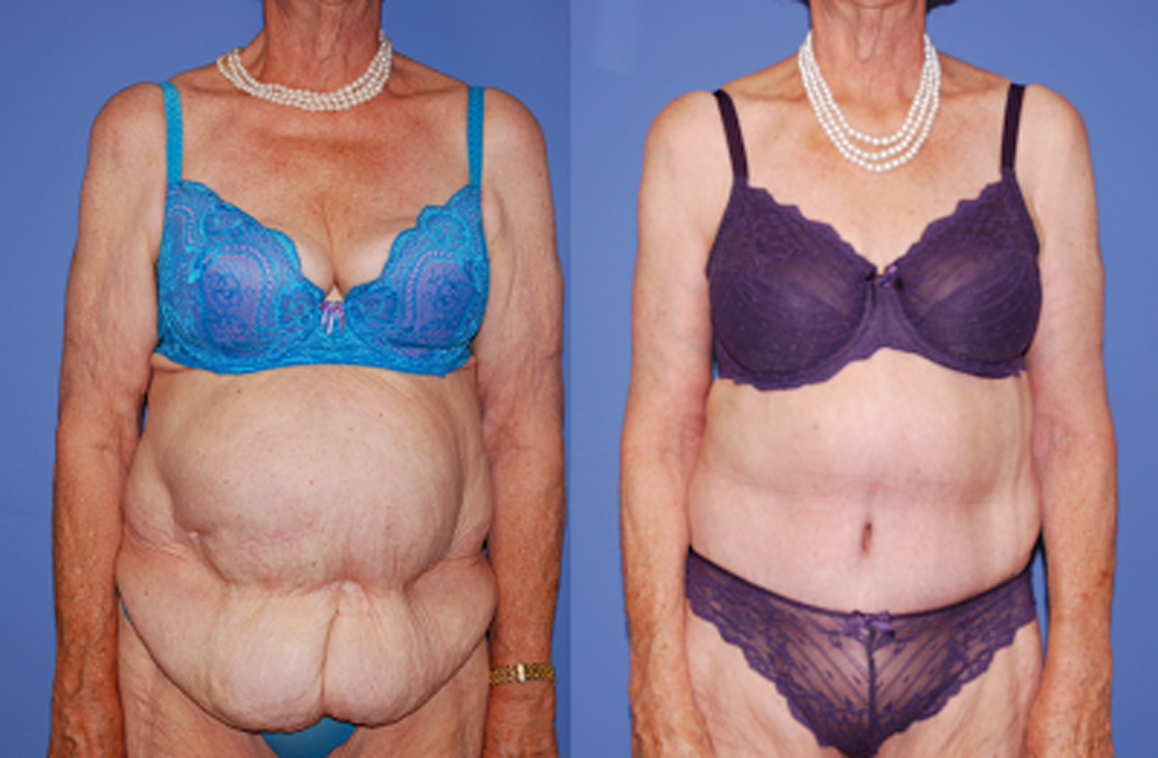 Post-Bariatric-Body-Contouring-newport-beach