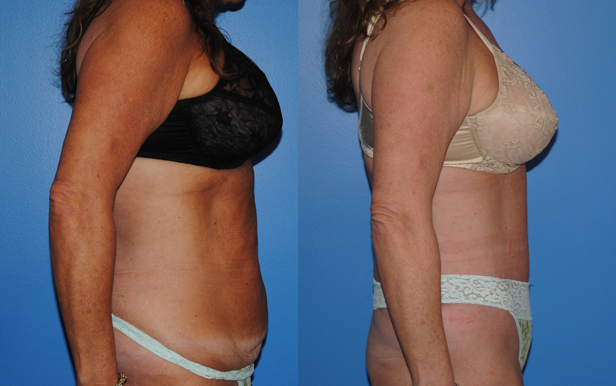 Tummy Tuck-Abdominoplasty-Dickinson-Newport Beach-Orange County