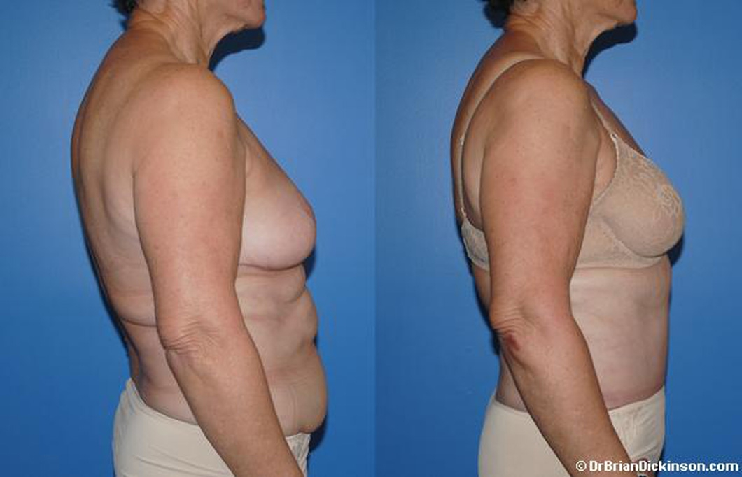 abdominoplasty_before_after