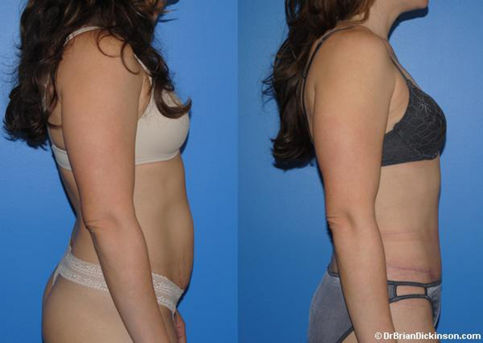 abdominoplasty_cosmetic_surgeon_Orange_County_Newport_Beach
