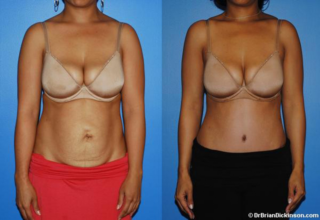 abdominoplasty_platic_surgeon