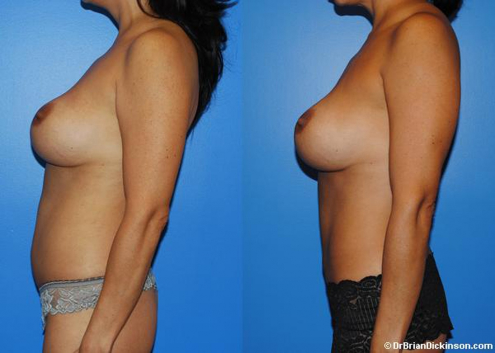abdominoplasty_prices