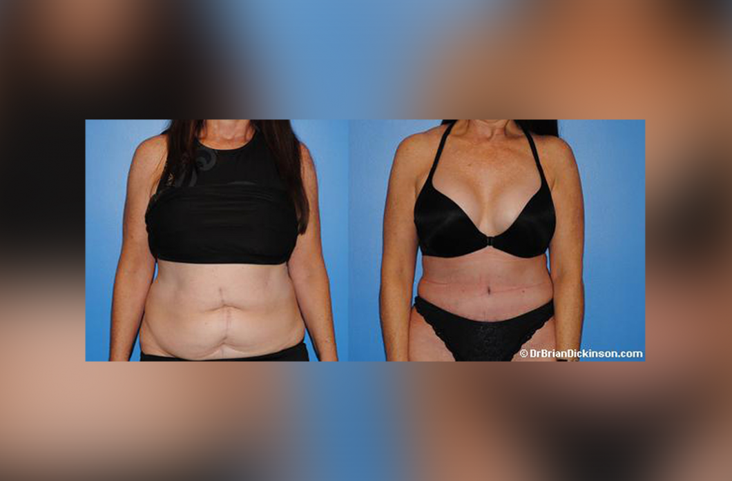 abdominoplasty_tummy_tuck_newport_beach